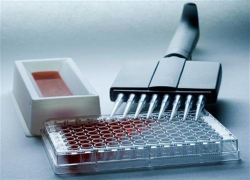 钟南山指导研制出快速检测试剂盒